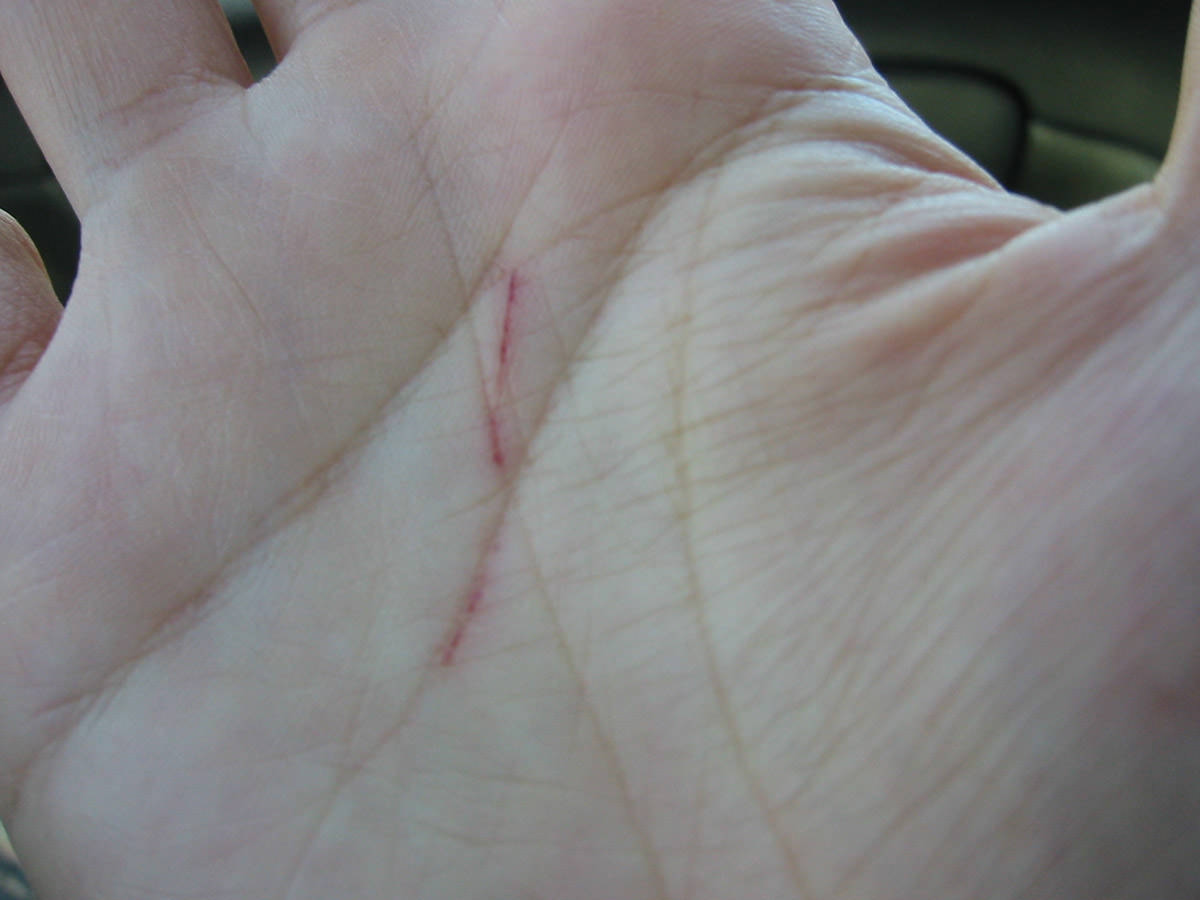 Slashed by a silver perch